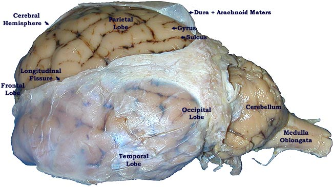 Pickled Sheep Brain-superficial superior view